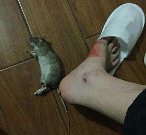 Khi bị chuột cắn chảy máu